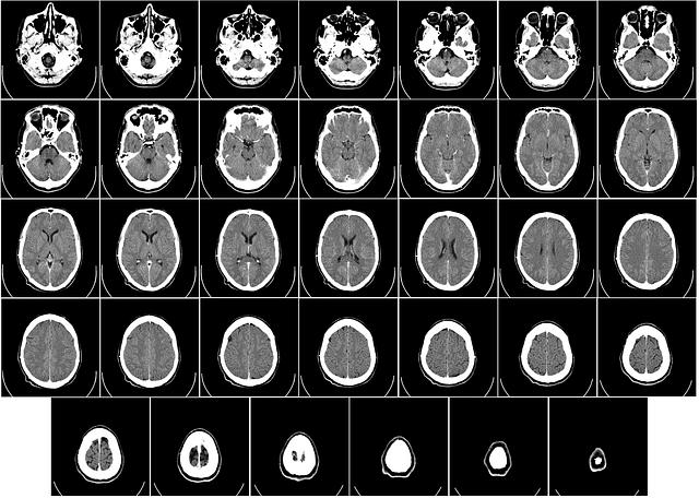 computer-tomography-62942_640.png