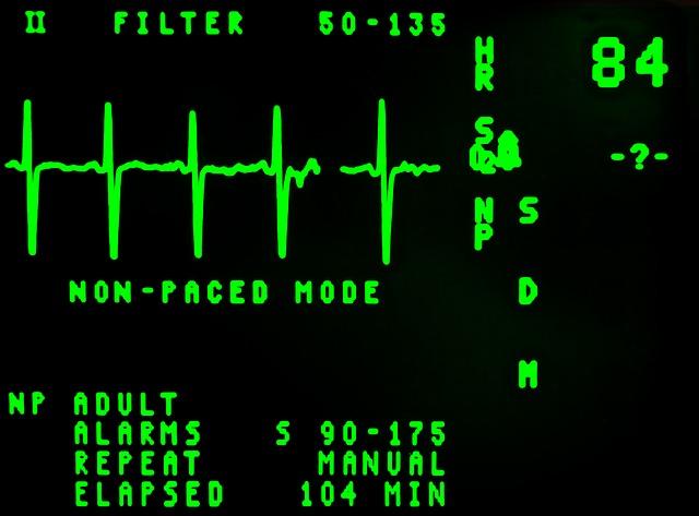 electrocardiogram-16948_640.jpg