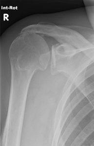 386px-Rot_cuff_tear_x-ray