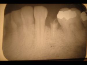 Immediate_dental_implant_x-ray-300x225