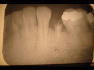 Immediate_dental_implant_x-ray-300x225