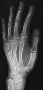 286px-X-ray_of_normal_hand_by_oblique_projection-144x300