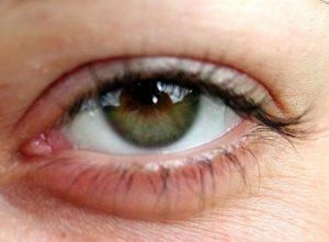 800px-Eye_opened_close_up-300x221